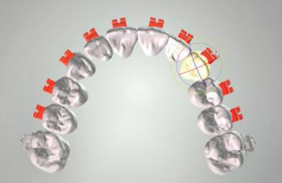 Teeth arch